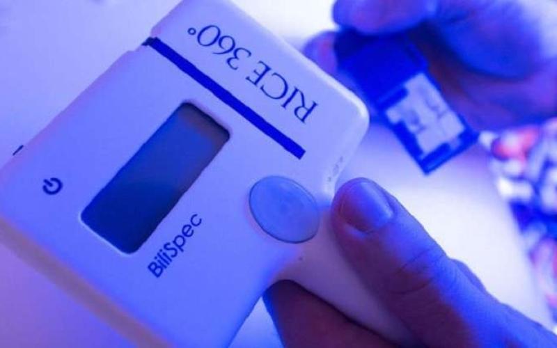 الصورة: جهاز جديد للكشف عن اليرقان عند حديثي الولادةفيديو