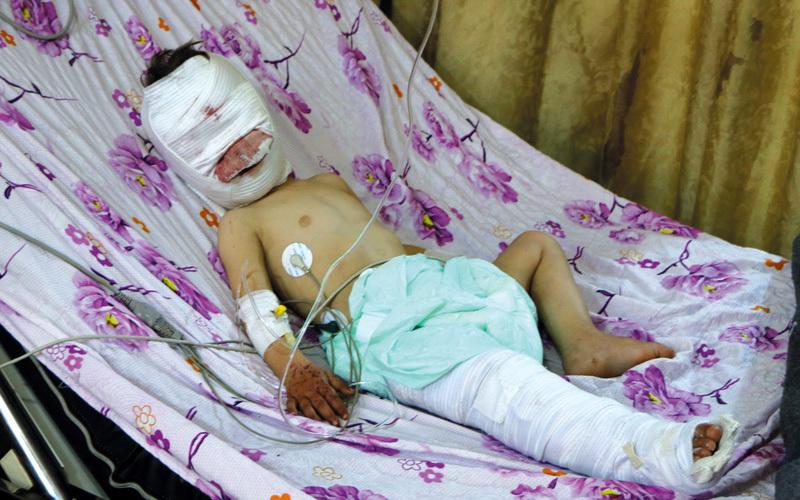مقتل 19 مدنياً في قصف تركي على عفرين