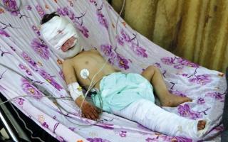 الصورة: مقتل 19 مدنياً في قصف تركي على عفرين
