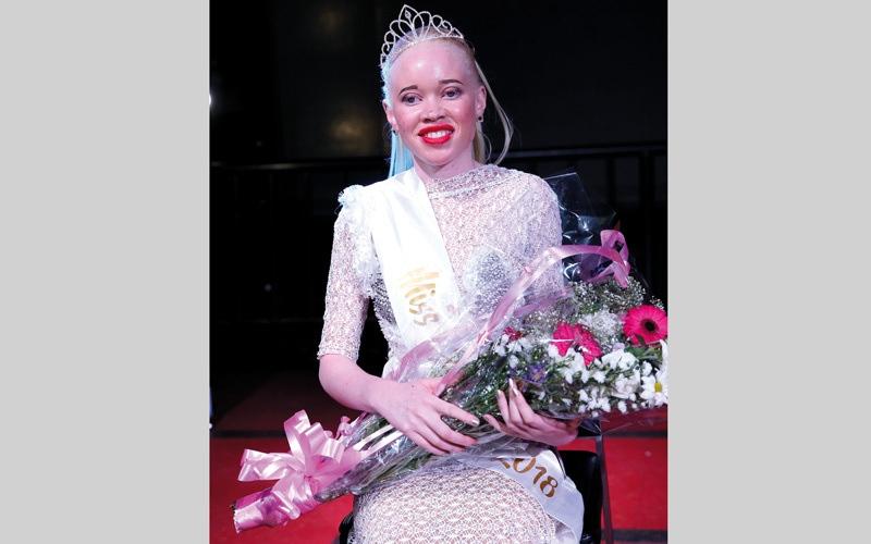 الصورة: «ملكة جمال البهاق» لا تجد سوى راعٍ.. و85 دولاراً