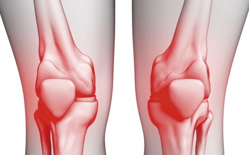 الصورة: دواء إماراتي عالمي لعلاج خشونة الركبة