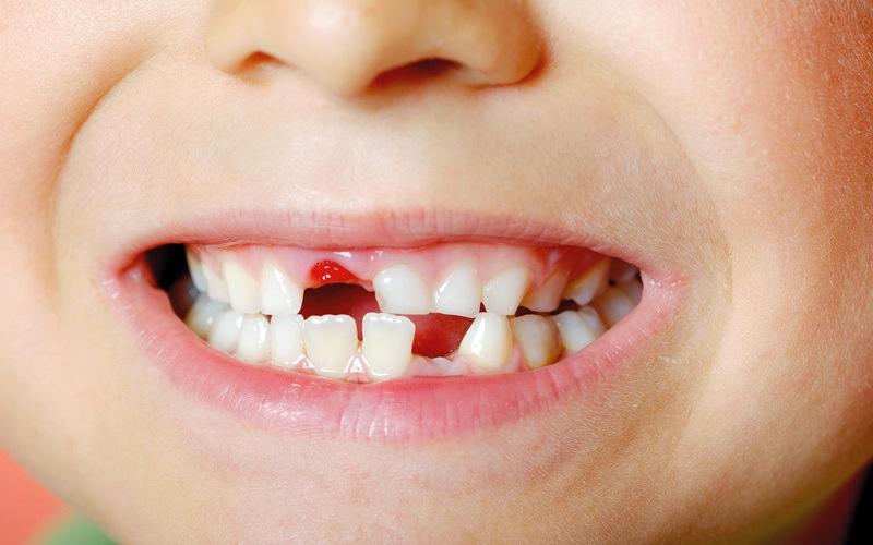 الصورة: أعراض تُنذر بنقص التمعدن بأسنان الطفل