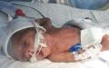 الصورة: عائلة «مُبر» عاجزة عن سداد كلفة ولادته