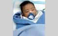الصورة: «كاثرين» خضع لعملية لعلاج انسداد المعدة