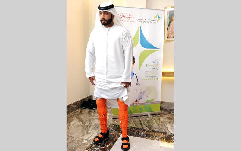 «صحة دبي» تنتج ساقين اصطناعيتين لمواطن بالطباعة ثلاثية الأبعاد
