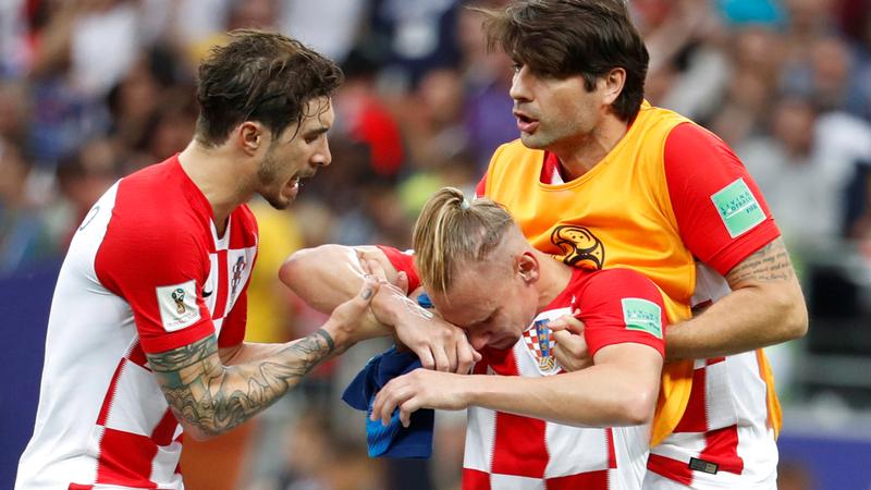 وانتهت بفوز منتخب فرنسا بلقب المونديال بعد تغلبه على كرواتيا 4  -2. ونترك لكم حرية التعليق عليها.