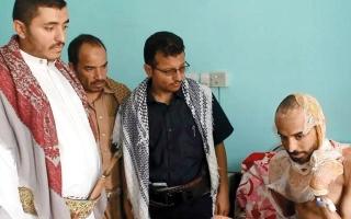 الصورة: الحوثيون عذبوا «الدكتور منير» بوحشية وأحرقوه بمادة حمضية