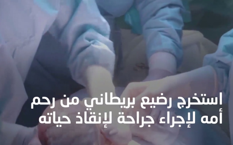 الصورة: بالفيديو.. استخراج جنين من رحم أمه لعلاجه ثم اعادته لاستكمال الحمل!