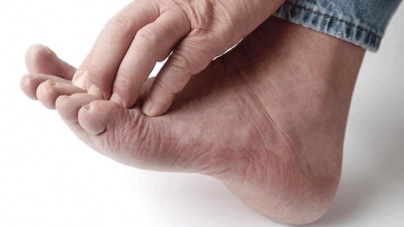 عدوى فطريات القدم أو ما يطلق عليها (القدم الرياضية) هي عدوى تصيب ما بين الأصابع وباطن القدمين، وتكثر الإصابة بها في المناطق الحارة.