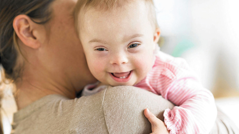 أمهات لأطفال مصابين بمتلازمة داون نجحن في تخطي العقبات.  أرشيفية