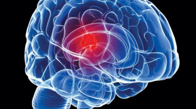 Scorpion venom for imaging brain tumors - Teller Report