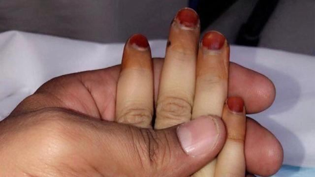 وفاة دانة القحطاني  يجتاح  تويتر .. وشقيقتها:  حرقة فراقها قتلتنا  - الإمارات اليوم