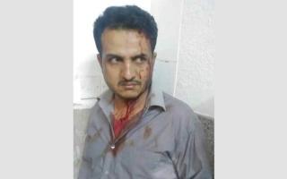 ميليشيات الحوثي تعتدي على طبيب في مستشفى بصنعاء
