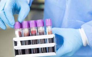 الصورة: «صحة دبي» تستحدث نظاماً من 5 فئات لتصنيف المتبرعين بالدم