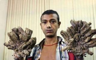 """الصورة: بالصور..""""الرجل الشجرة"""" يطلب بقطع يديه: 25 عملية لم تنفع"""