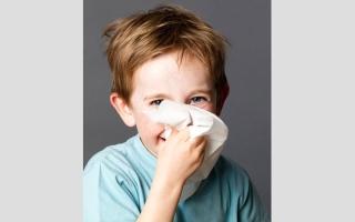 الصورة: نصائح لإيقاف نزيف الأنف لدى الأطفال