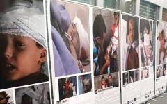 الصورة: معرض فوتوغرافي بجنيف يكشف جرائم الحوثيين بالصور.. وقتلى التعذيب إلى 171 شخصاً