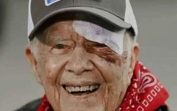 الصورة: «جراحة» للرئيس الأميركي السابق كارتر «دون مضاعفات»