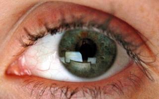 الصورة: التوتر المزمن يهدّد البصر.. من رفة العين حتى العمى