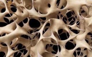 """الصورة: سبب غريب لـ """"هشاشة العظام"""" يضاعف احتمالات الإصابة به"""