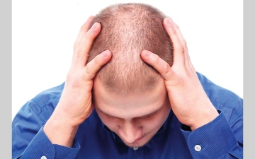الصورة: لماذا يحدث الصلع عند الرجال؟