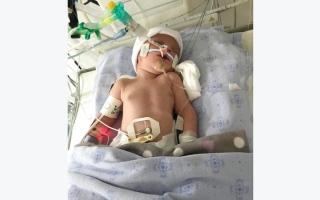 الصورة: الرضيعة «حياة» تعاني فتقاً في الحجاب الحاجز.. ورئة غير مكتملة