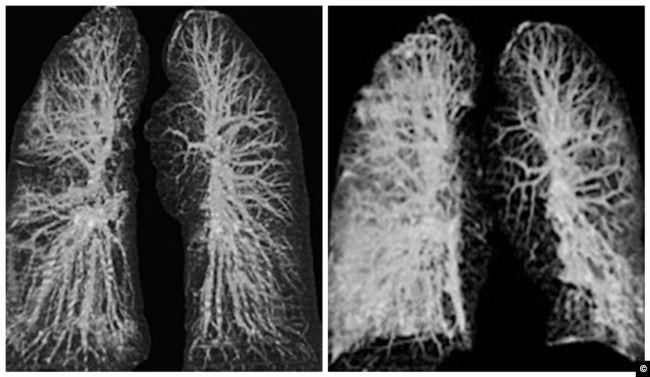 رئتي المصاب بالكورونا: على اليسار قبل الإصابة، وعلى اليمين بعد الإصابة
