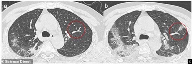 الفراغات المليئة بالدم والصديد أو الماء في رئة المصاب بالكورونا، قبل (على اليسار) وبعد (على اليمين)