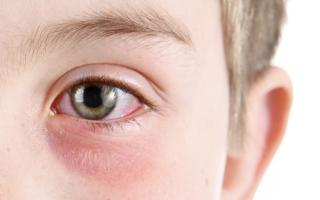 الصورة: أطباء: التهاب العين قد يكون مؤشراً إلى الإصابة بفيروس كورونا