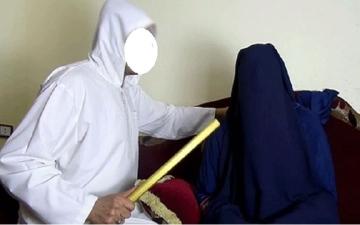 """الصورة: تعرضت للضرب والحرق.. وفاة طفلة خلال """"جلسة رُقية"""" في الجزائر"""