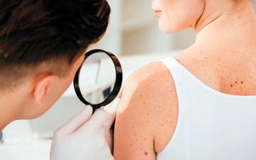 الصورة: 5 نصائح للوقاية من سرطان الجلد