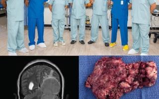 استئصال ورم يعادل نصف حجم الدماغ من مريضة خمسينية في أبوظبي thumbnail