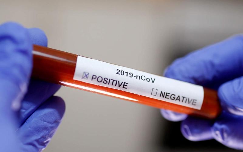الصورة: «الصحة العالمية» تطلق «خطة كوفاكس» لابتكار لقاح كوفيد-19