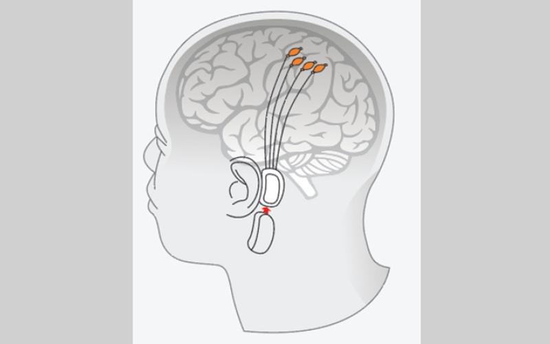 الصورة: غرافيك.. رقاقة تتحكم في وظائف الدماغ والذاكرة والأحلام