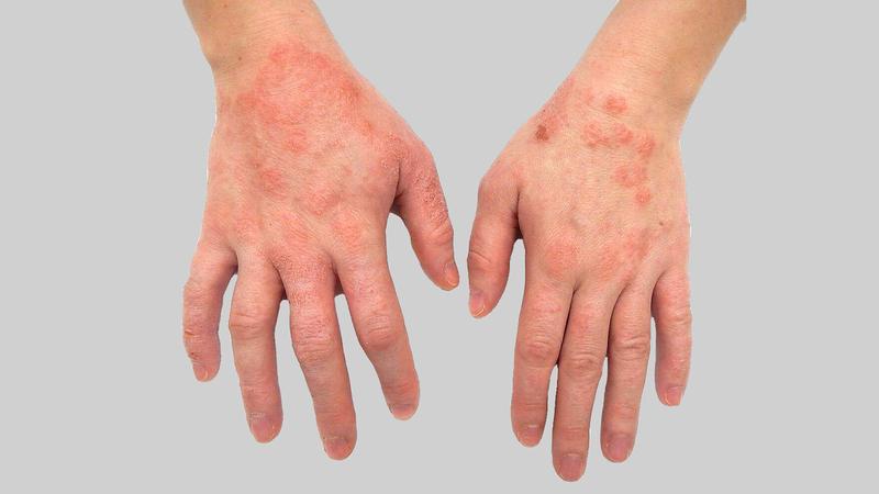 المؤتمر شهد إطلاق «ليزر» لعلاج الأمراض الجلدية. من المصدر