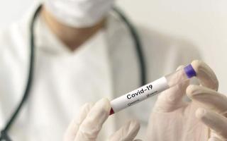الصورة: «صحة دبي» تحدّث قائمة المختبرات المعتمدة لفحص «كوفيد-19»