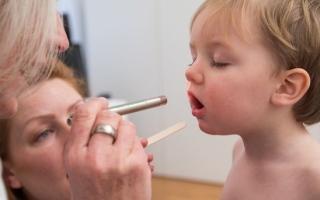 الصورة: القرحة القلاعية في فم الطفل مؤشر لأمراض أخرى