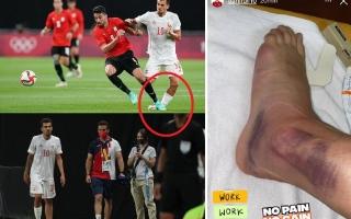 الصورة: صورة صادمة لكاحل لاعب إسبانيا بعد إصابته أمام منتخب مصر