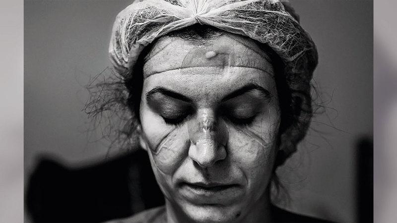 صورة الفنان البرازيلي آري باسوس، تعرض الدكتورة جوليانا ريبيرو بعد ثماني ساعات من العمل المتواصل في غرفة الطوارئ الخاصة بالمصابين بفيروس كورونا، وتبرز العدسة الآثار على وجهها وما يرويه من قصص إنسانية مؤلمة أوجعت العالم بأسره.  من المصدر