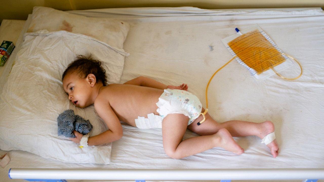 الأطباء أزالوا شظايا من بطن الطفل الأفغاني