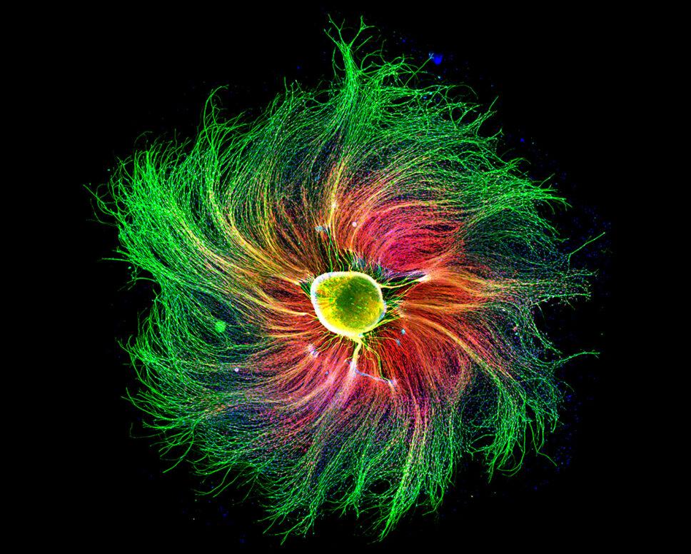 مجموعة من الخلايا العصبية تسمى عقدة الجذر الظهرية ، وتظهر بتكبير 10 مرات ، من جنين فأر بالغ من العمر 16 يومًا.