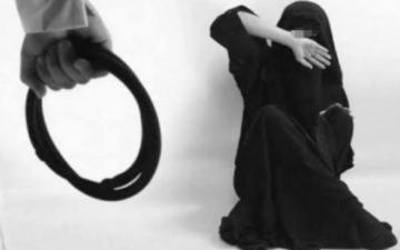 الصورة: تفاصيل تعرض فتاة للتعذيب في بريدة.. ضرب مبرح وتهديد بالقتل بـ«رشاش»