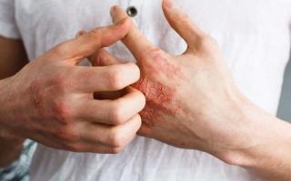 الصورة: علامات على جلدك تنذر بارتفاع خطير بمستوى الكولسترول