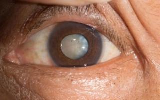 الصورة: عيونك في خطر.. 5 أعراض للمياه البيضاء