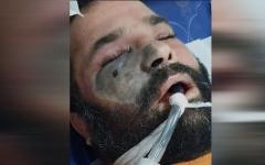 """الصورة: إصابات مرتفعة بـ """"الفطر الأسود"""" في سورية خلال يومين"""