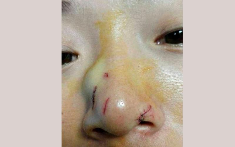 الصورة: بالفيديو.. ثعبان يهاجم فتاة بسبب قبلة