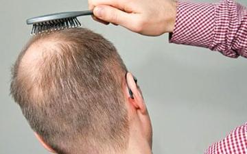الصورة: التساقط المرضي  لا يمنع صبغ الشعر