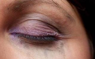 الصورة: نصيحة: أزيلي مكياج العيون تماماً قبل النوم