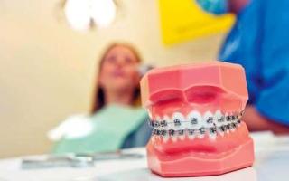 تقويم الأسنان.. دواعٍ صحية أم تجميلية