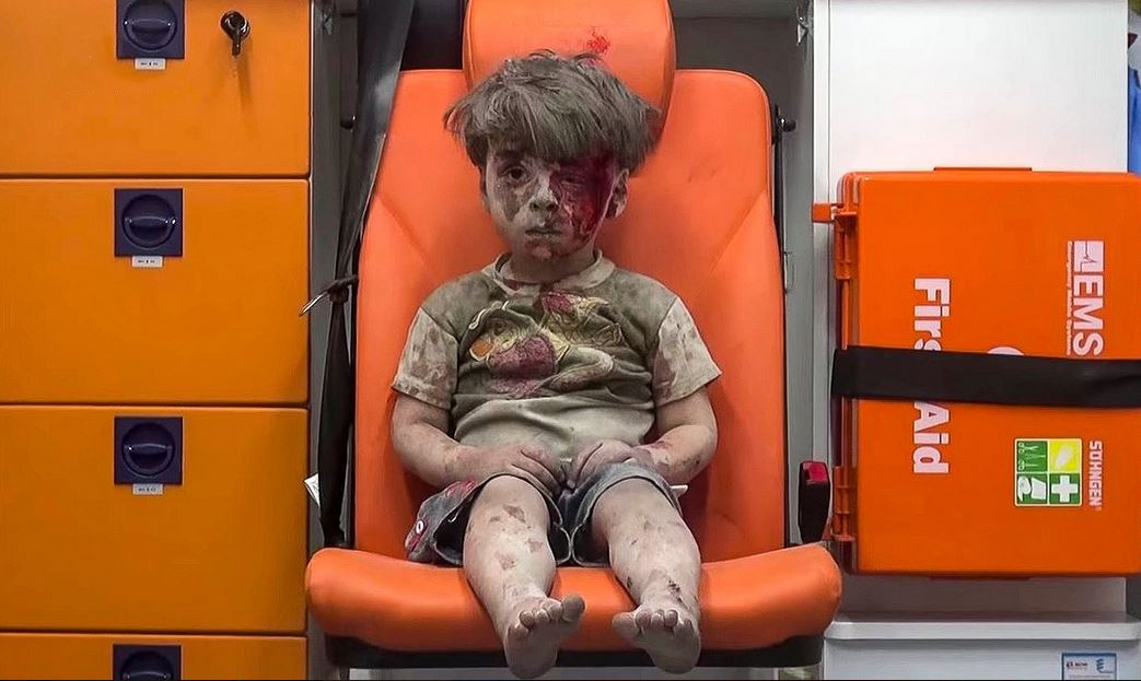 بالفيديو والصورة ... صدمة الطفل السوري عمران تملآ الأخبار ومواقع التواصل